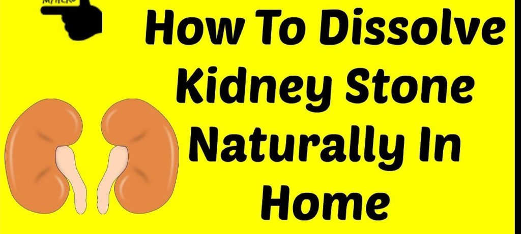 How To Dissolve Kidney Stones In One Day Timeslifestyle