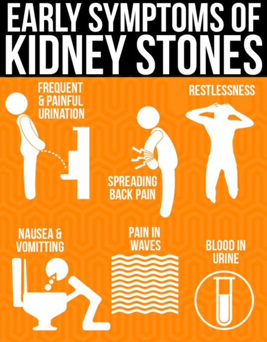 how to know if you have kidney stones