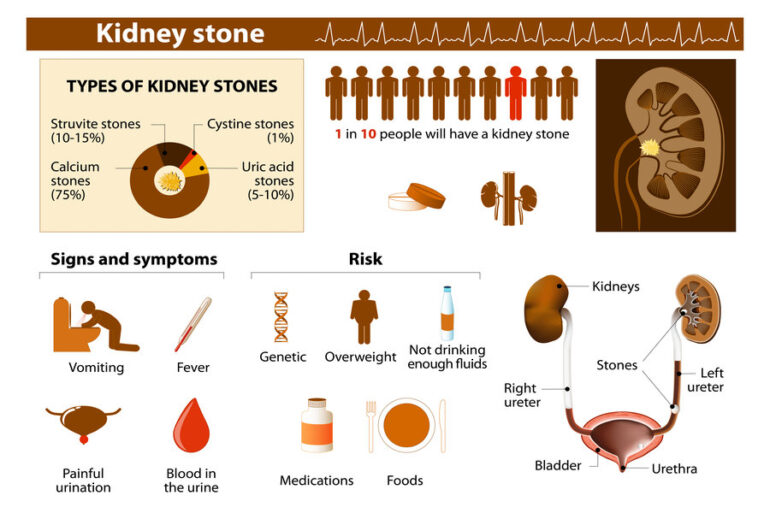 How Are Kidney Stones Formed