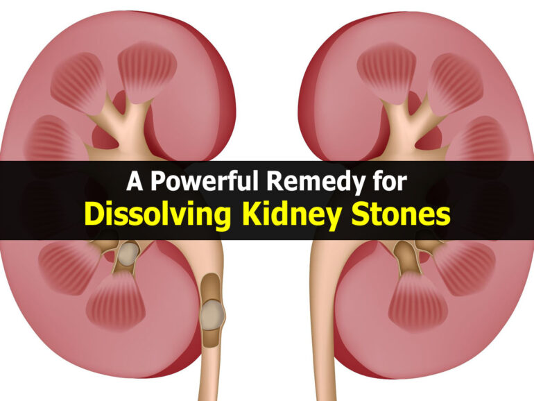 How to dissolve kidney stones in one day? - Timeslifestyle