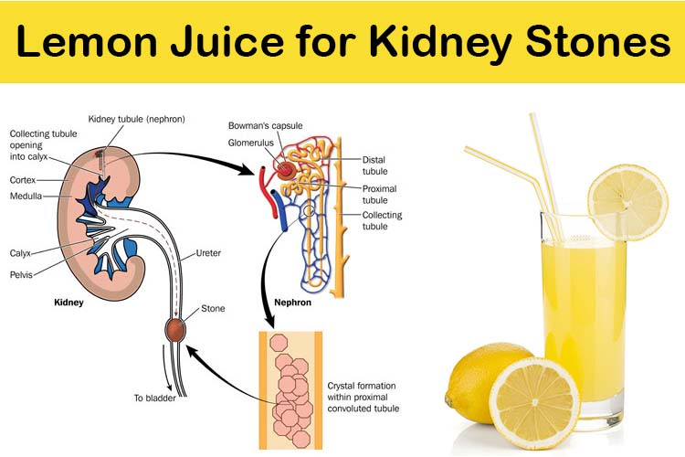 home remedy to break down kidney stones