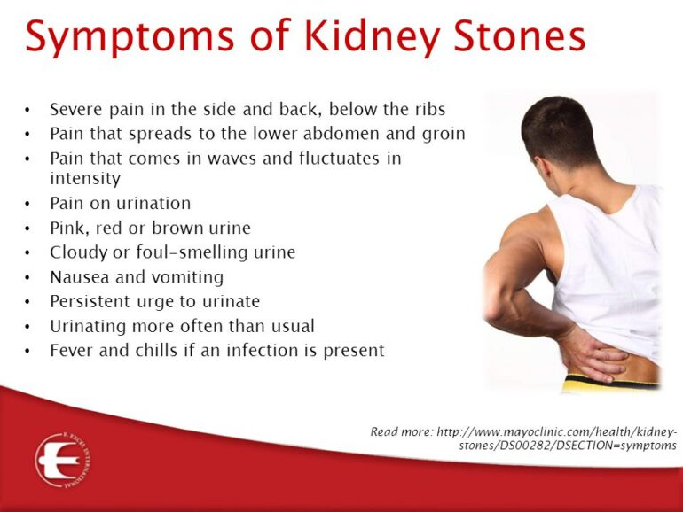 location of kidney stone pain