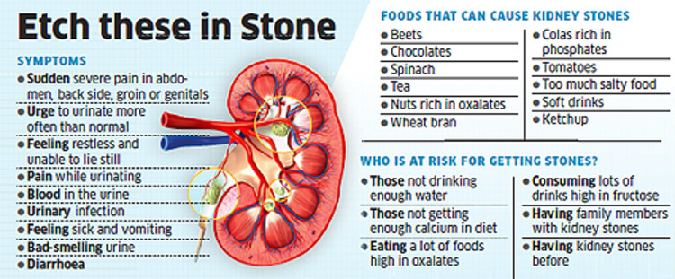 what causes kidney stones