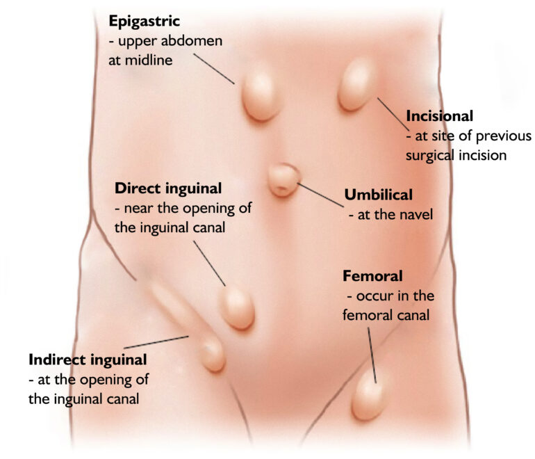 Inguinal Hernia Location Diagram - Complete Wiring Diagrams •