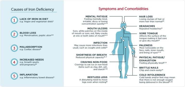 Anemia and Iron Deficiency Signs, Symptoms, Diet Supplements