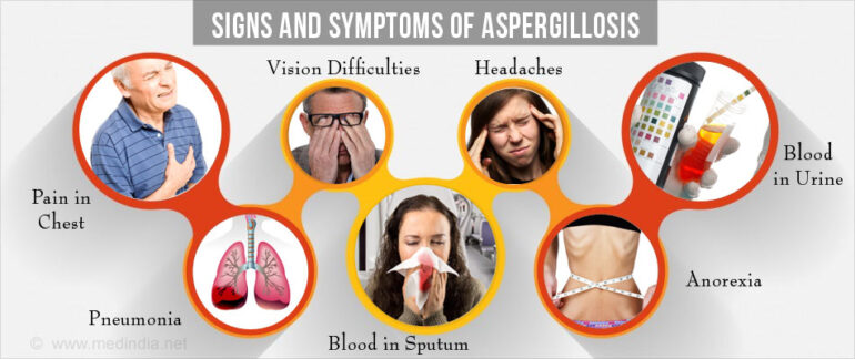 Aspergillosis Causes, Symptoms, Prevention and Treatment