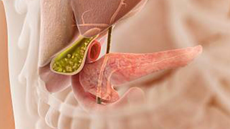 Gallstones diet treatment