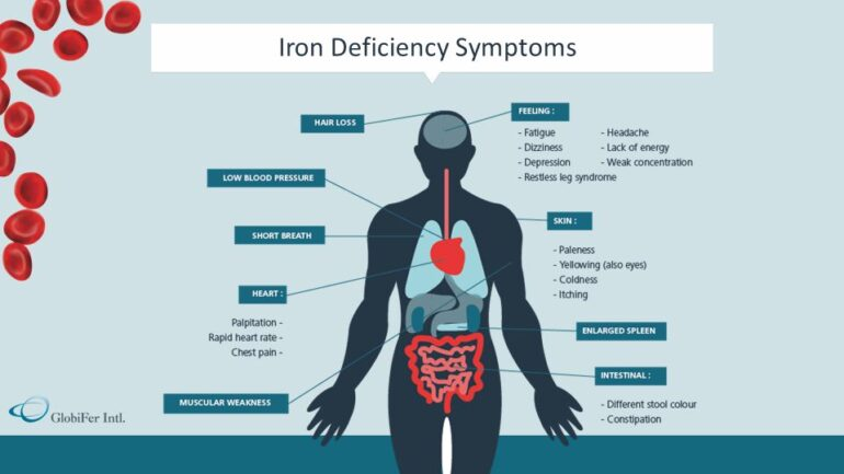 iron deficiency anemia in pregnancy thesis Read this essay on iron deficiency anemia come browse our large digital warehouse of free sample essays  normal like the anemia that develops during pregnancy .