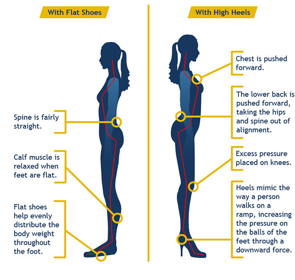 High Heels Effects On Spine, Body, Hips and Knees