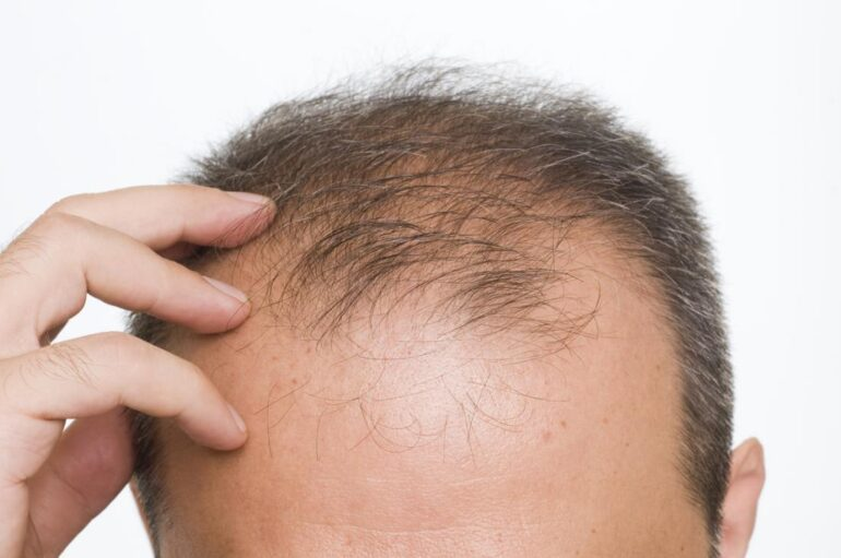 4 Causes of Hair Loss and How to Treat Them